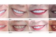 How much does teeth whitening cost? | Before and after photos of teeth whitening and other cosmetic dentistry procedures | Photo courtesy of Eisdorfer Dental Group