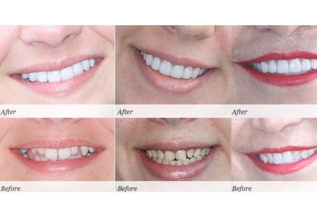 Smile Like You Paid for It! The Cost of Teeth Whitening