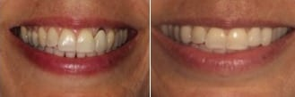 Smile Like You Paid for It! The Cost of Teeth Whitening | Before and after teeth whitening, courtesy of Eisdorfer Dental Group